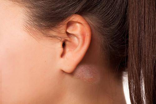 Шишка за ухом у ребенка на кости: почему появилась, что делать