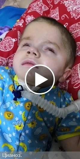Синеет носогубный треугольник - запись пользователя марина (marrat88) в сообществе здоровье новорожденных в категории болезни сердца - babyblog.ru