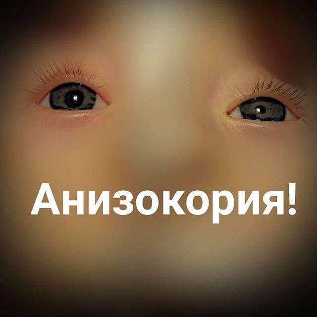 Анизокория – разные зрачки по размеру у ребенка