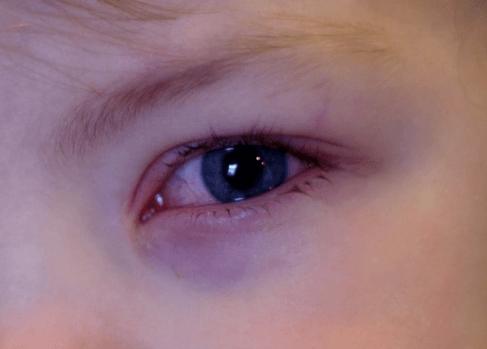 Опухшие веки у грудничка. что делать, если у ребенка опух глаз или верхнее и нижнее веко. что противопоказано при покраснении век