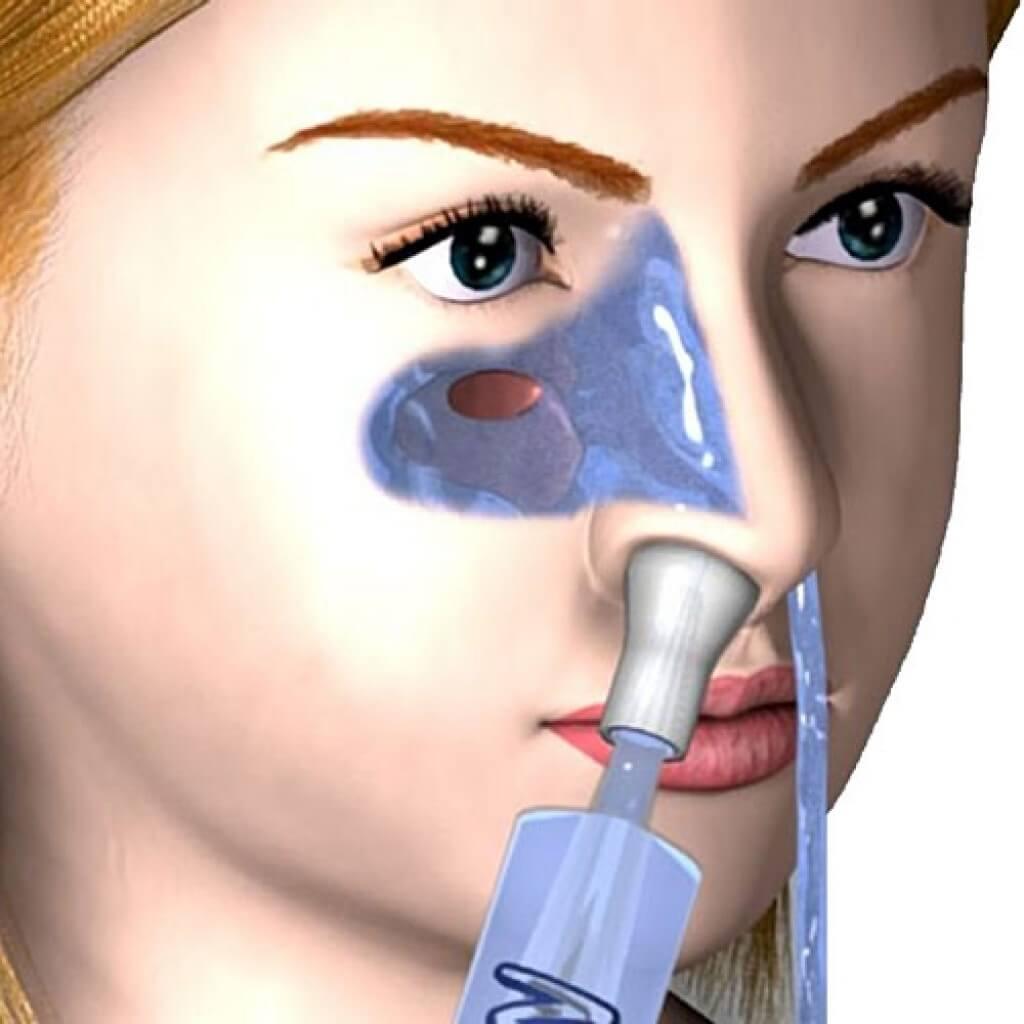 Физраствор в носик ребенку. можно ли промывать нос физраствором? как правильно промывать нос ребенку
