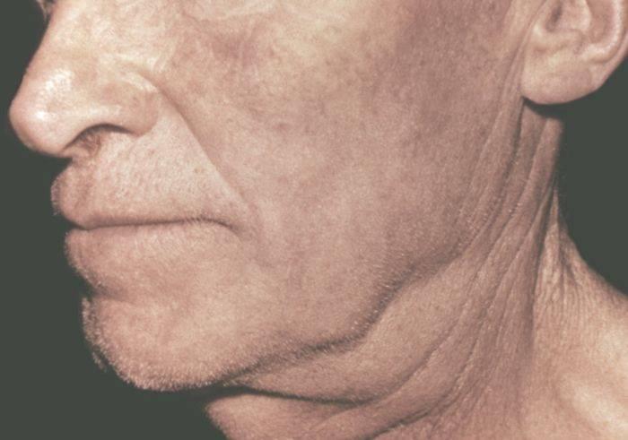 Причины и лечение увеличенных лимфоузлов на шее у детей