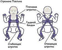 Симптомы и лечение дисплазии тазобедренных суставов у новорожденных
