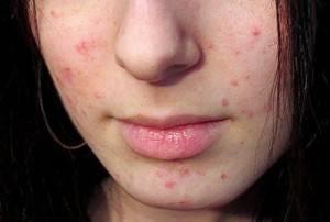 Аллергическая сыпь у детей: как выглядит и почему появляется сыпь у детей разных возрастов. лечение и профилактика аллергии у детей (140 фото)