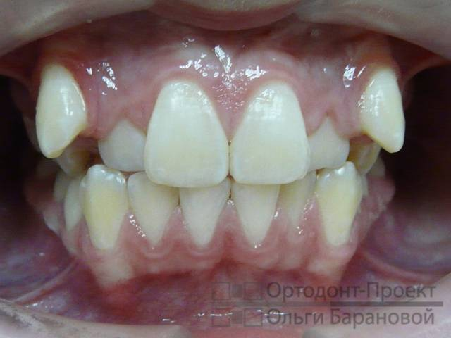 Реально так зубы долго режутся или я что-то не понимаю?