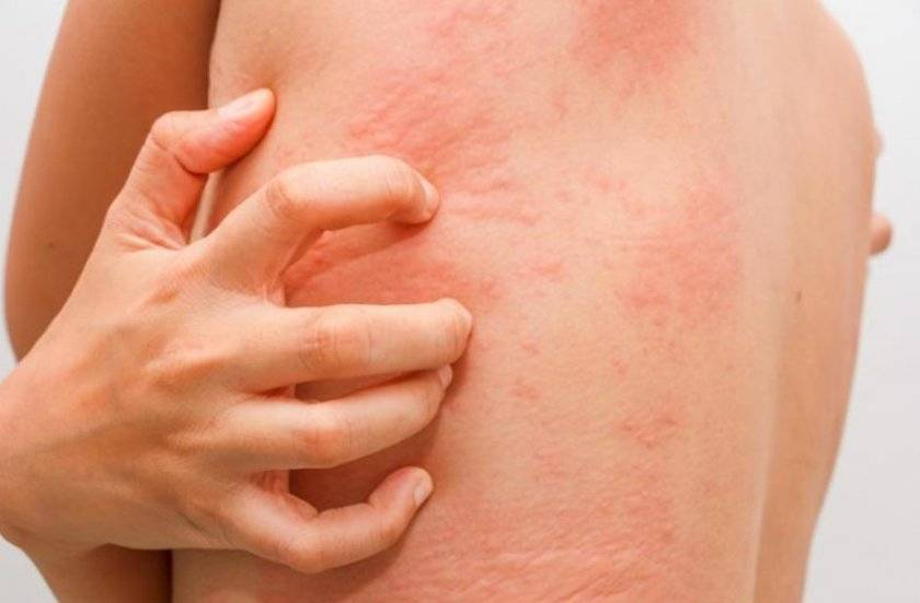 Признаки аллергии у детей