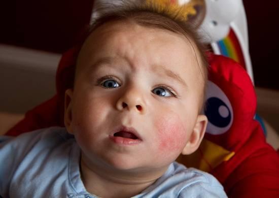 Причины аллергии на лице у грудничка, что делать родителям