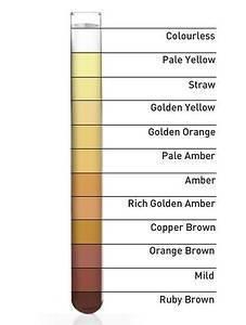 Почему у ребенка очень темная, цвета чая, коричнево-желтая моча