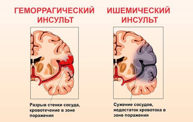 Открытое овальное окно у кого есть и было? - открытое овальное окно - запись пользователя лисичка (mamalublu) в сообществе здоровье новорожденных в категории болезни сердца - babyblog.ru