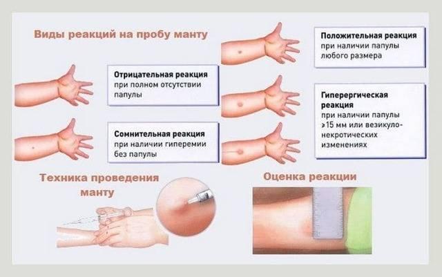 Проба манту на туберкулез и ее нормы  у ребенка после введения вакцины
