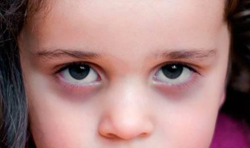 Синяки под глазами у ребенка: причины и лечение, фото