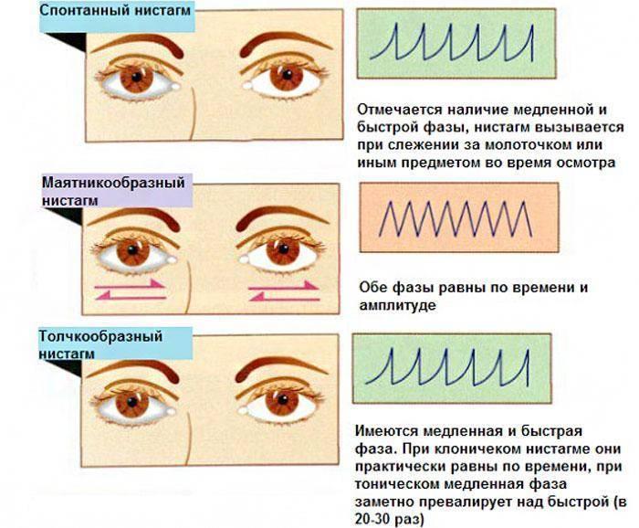 Почему у новорожденного глазки бегают в разные стороны