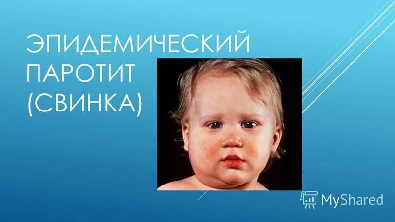 Болезнь свинка (эпидемический паротит) у детей – симптомы, лечение, последствия