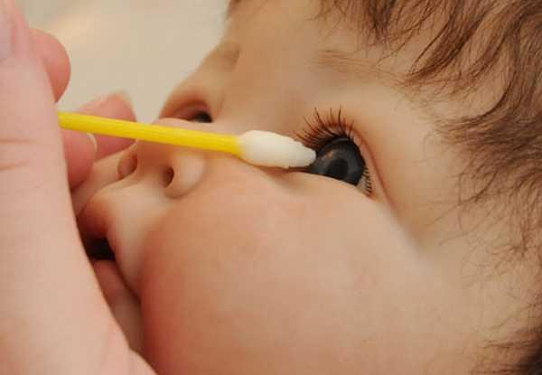 Как вытащить ресничку из глаза малыша? - запись пользователя ирина (bhbyf81) в сообществе здоровье будущей мамы и малыша в категории зрение - babyblog.ru