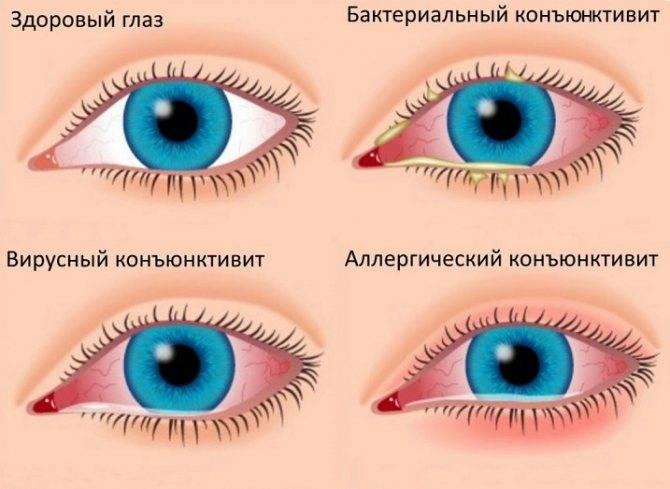 Как закапывать капли в глаза грудничку