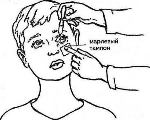 Kak-pravilno-zakapyvat-glaza - запись пользователя танюшка (tanya_zhuck) в сообществе здоровье новорожденных в категории болезни глаз - babyblog.ru