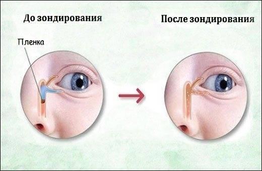 Непроходимость слезного канала у детей: показания к зондированию
