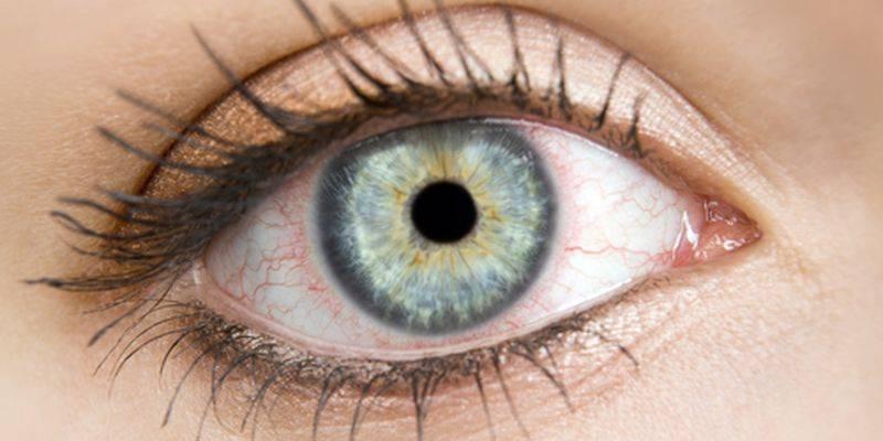 Повод насторожиться: причины красных сосудов в глазах у детей