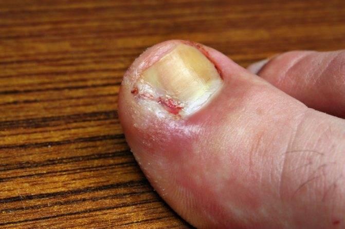 Как избавиться от вросшего ногтя на ноге у ребенка?