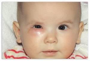 Симптомы и лечение дакриоцистита новорожденных