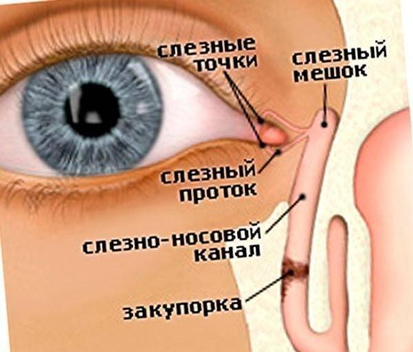 Непроходимость слезного канала (дакриоцистит) - стр. 8 - запись пользователя пичуга (pichuga) в сообществе здоровье новорожденных в категории болезни глаз - babyblog.ru