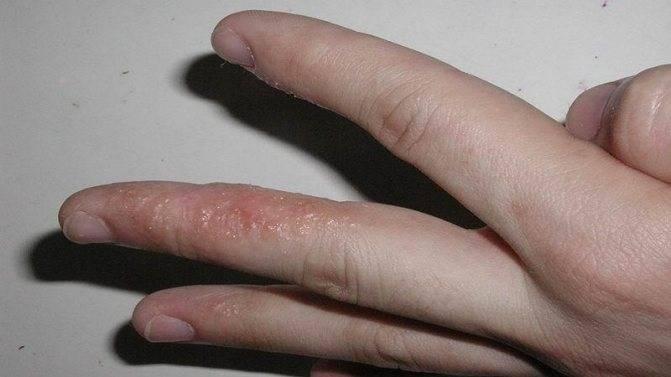 Облезают пальчики (((