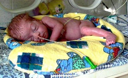 Признаки недоношенных новорожденных детей | уход за недоношенными новорожденными