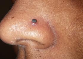 Полипы в носу у ребенка: симптомы и лечение