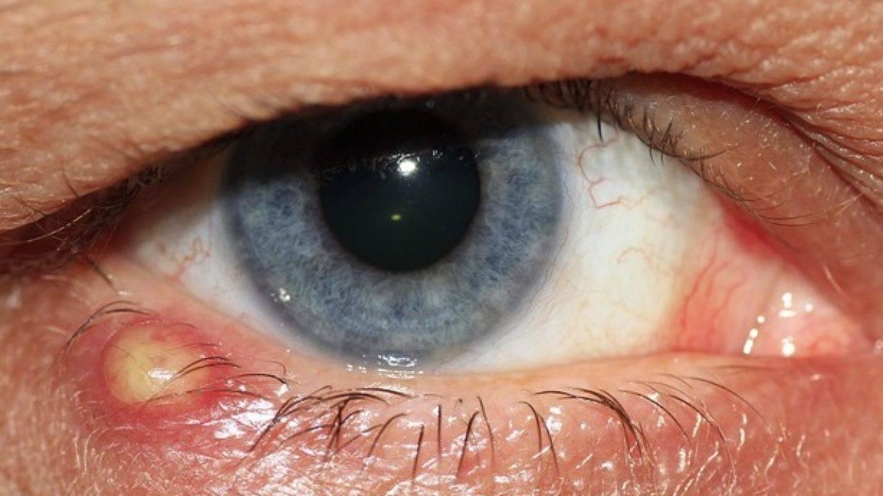 Красные белки глаз у ребенка: причины