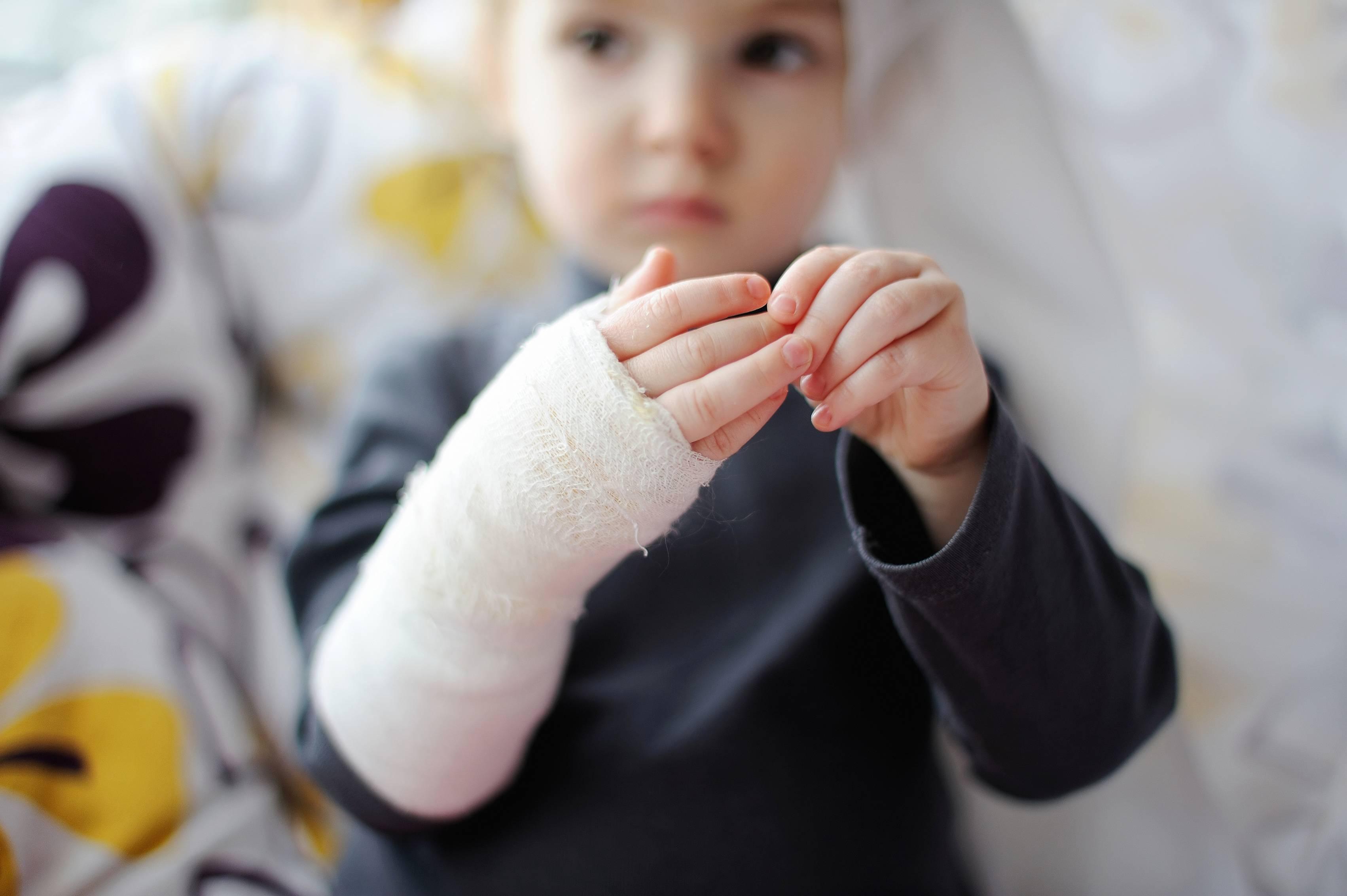 Ожоги у детей - ожоги второй степени у детей - запись пользователя надежда (id766256) в сообществе зимняя забота - babyblog.ru