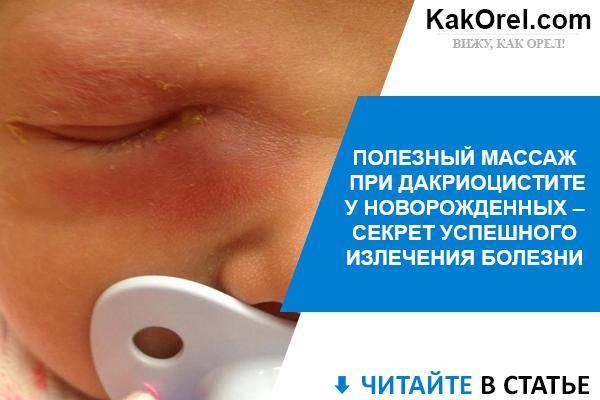 Комаровский - массаж слезного канала у новорожденных: массаж глаза при непроходимости слезного канала