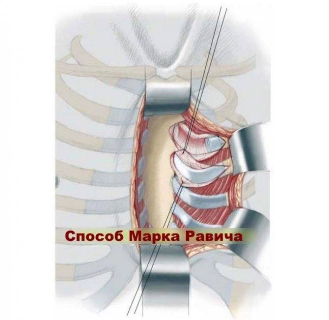 Впадина в грудной клетке у новорожденного