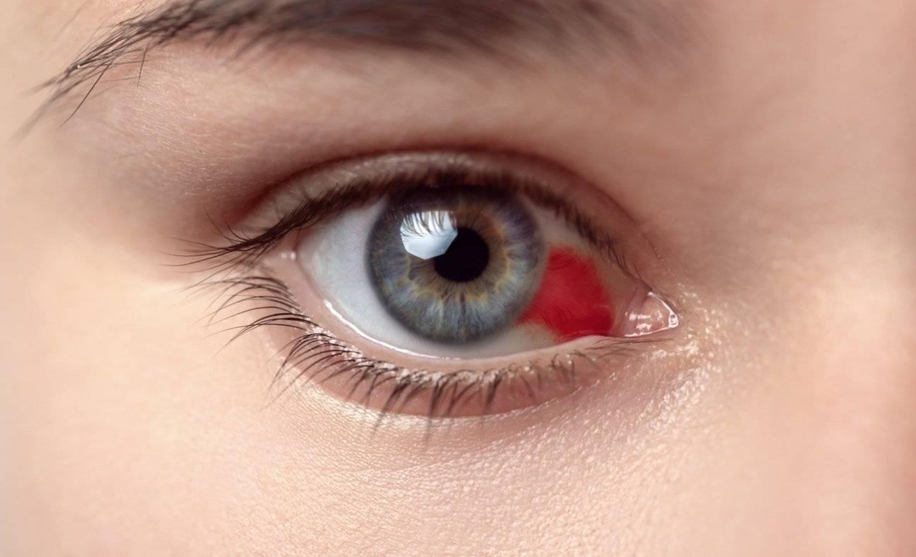 Что делать когда лопнул сосуд или полопались капилляры в глазу ребенка