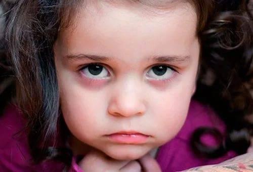 Синяки под глазами у ребенка, причины: почему и от чего у детей появилась синева в 1-3 года?
