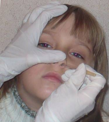 Симптомы перелома носа у ребенка