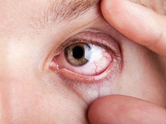 Почему появляются белые выделения из глаз?