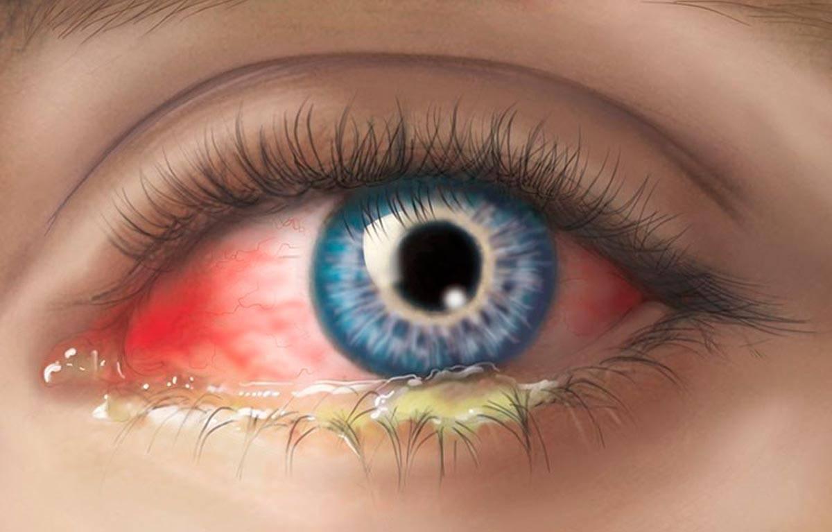 Красные глаза у ребенка — виды покраснений, причины, симптомы