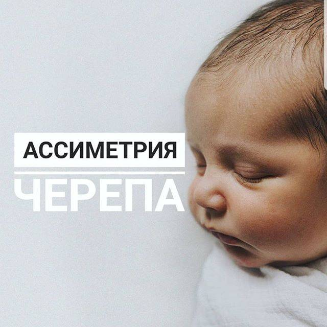 Неровная голова в 2 месяца(