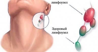 Что делать, если увеличены лимфоузлы на шее у ребенка?