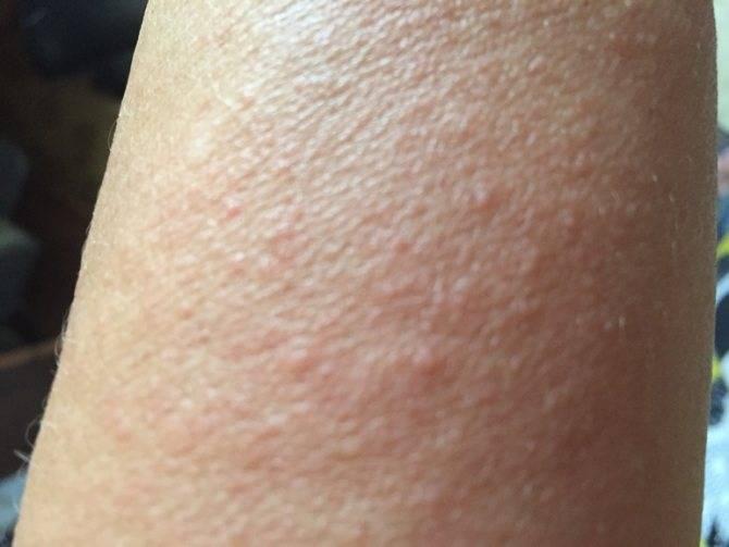Причины гусиной кожи у ребенка на ногах и животе