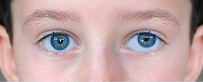 Почему развивается сходящееся содружественное косоглазие у детей?