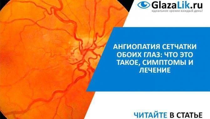 Ангиопатия сетчатки ((((
