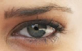 У ребенка фиолетовые круги под глазами