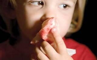 Почему у ребенка при насморке сопли с кровью, и что делать?