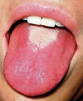 Мелкая сыпь во рту у взрослых