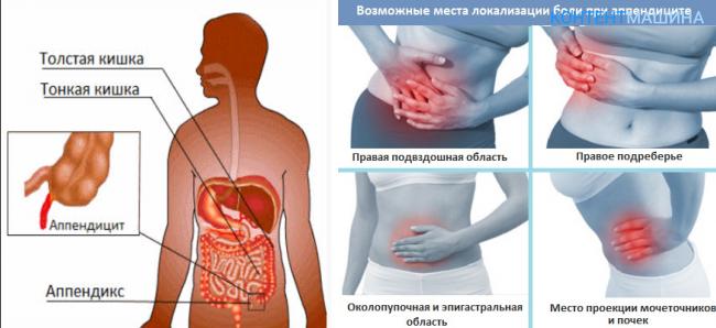 У ребенка болит живот в области пупка, справа, слева, боли в животе у ребенка – что делать?
