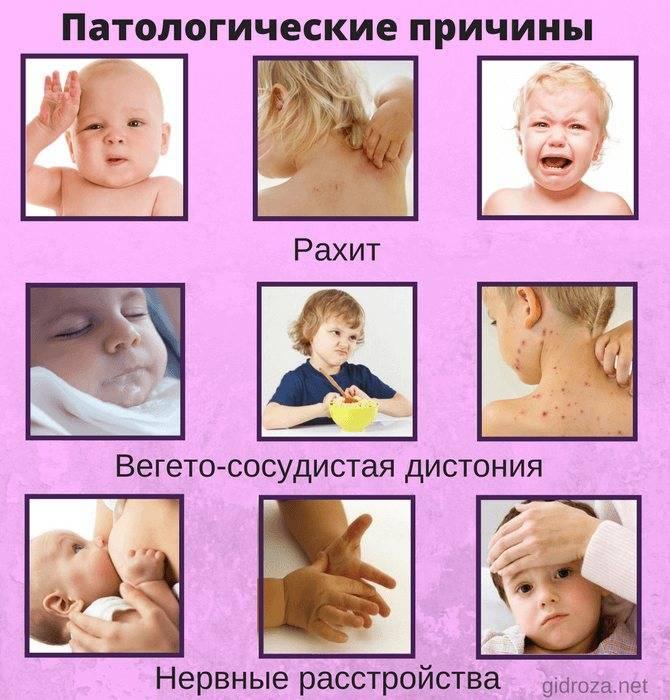 Холодный пот у ребенка — причины появления