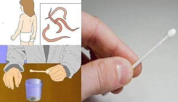 Как сдавать соскоб на яйца глист?