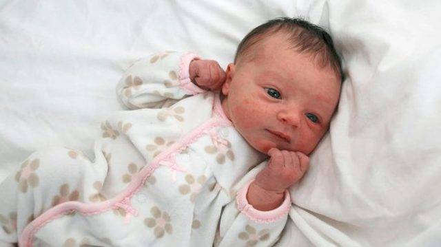 Здоровье новорожденного | как ухаживать за кожей
