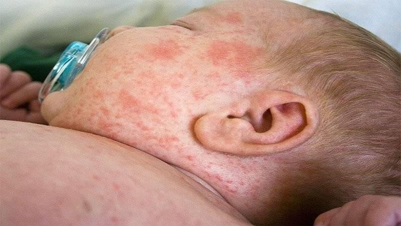 Розеола у детей: симптомы инфекции и как не перепутать ее со схожими заболеваниями?